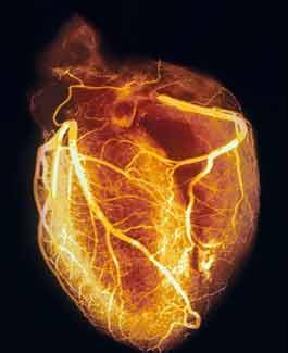 heart-angiogram